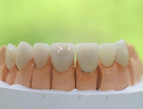 Zahnersatz aus Keramik