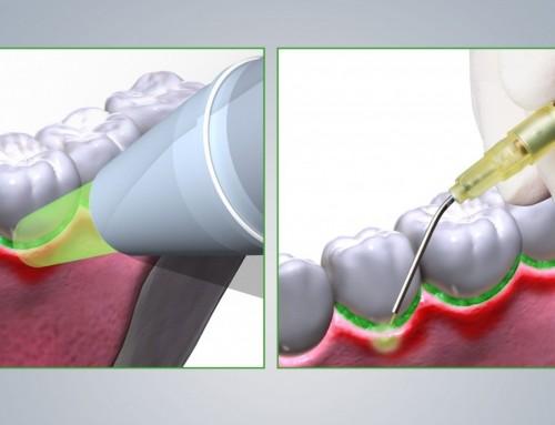 Moderne Parodontitistherapie mit EmunDo®