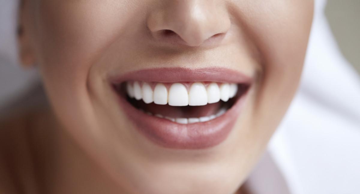 Ästhetische und weiße Zähne dank natürlicher Zahnaufhellung.