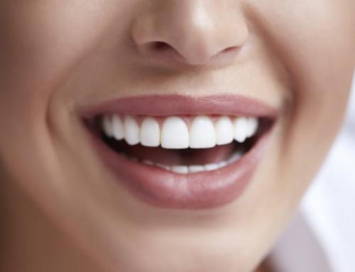 Natürliche Zahnaufhellung – Ästhetische und weiße Zähne